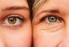 Photo of Free Radicals: A Major Cause of Aging and Disease