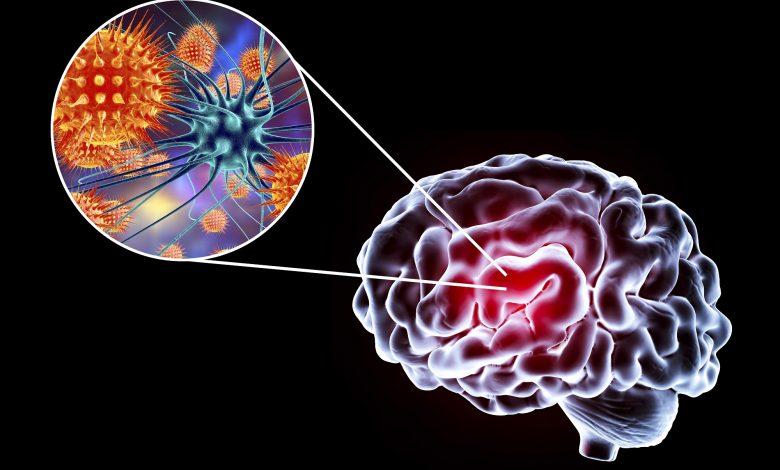 neuro-systemic diseases