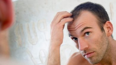 Photo of How to Stop Baldness and Regrow Hair