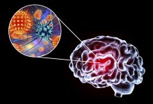 Photo of The Linking Pathogen In Neuro-Systemic Diseases: Chronic Fatigue, Alzheimer's, Parkinson's & Multiple Sclerosis