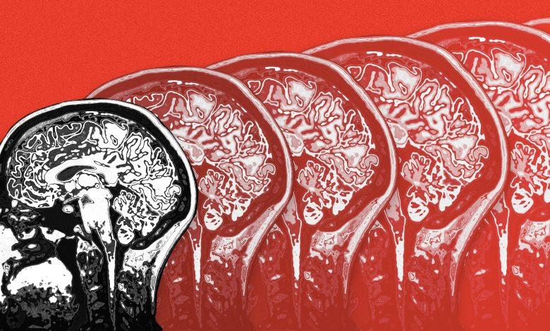 curing alzheimer disease