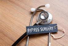 Photo of Safe Alternatives to Bypass Surgery